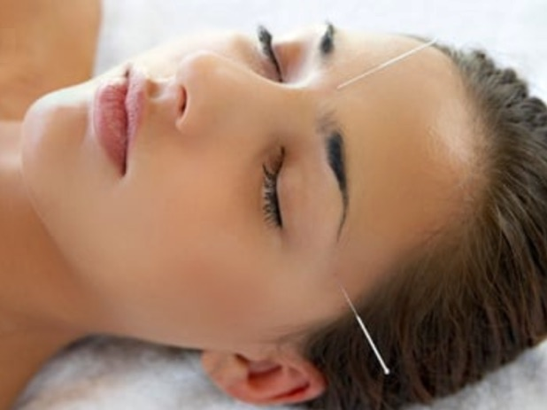 Acupuncture can help you